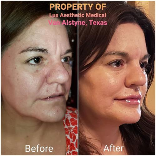 A total liquid Facelift includes Voluma for Cheek lift, Volbella for Lip Volume replacement, Versa for undereye tear trough bag treatment, Botox to smooth wrinkles around the eyes, brows and forehead with a eyebrow lift.