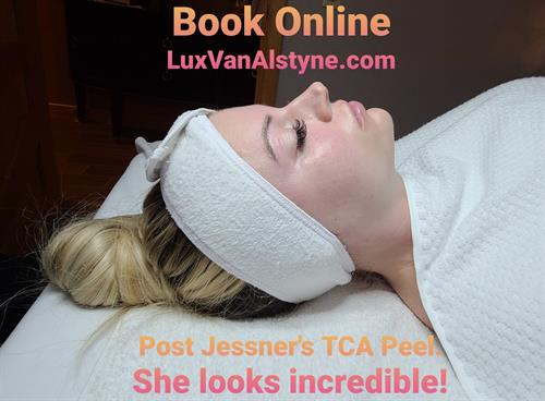 Medical Grade Facials make all of the Difference. Chemical Peels and Microneedling.