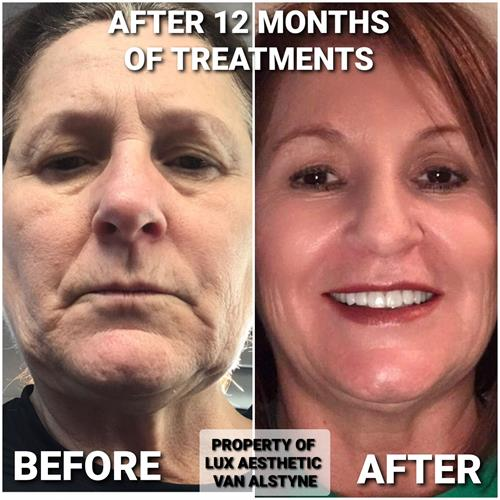 More than 10 Younger in just 13 months. No Filters needed! Treatment included 13 Facials of mild and medium peels, IPL Laser photofacials, Botox, Volume replacement with Dermal Fillers and home skincare with ZO Skin and ZO retinol  products.