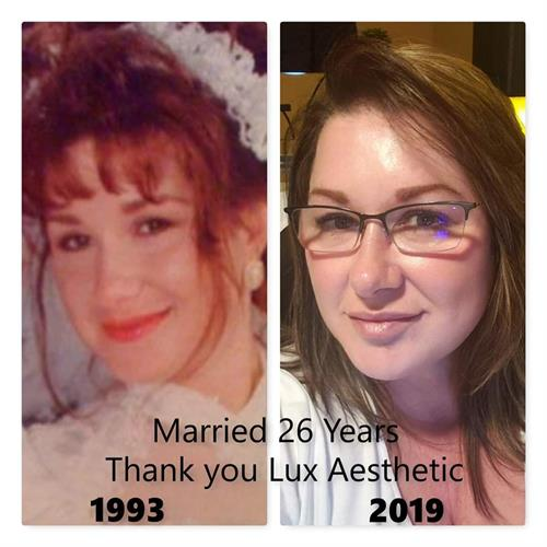 26 years later with Lux Aesthetic Medical Services