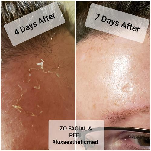 Before and After a ZO Skin peel.