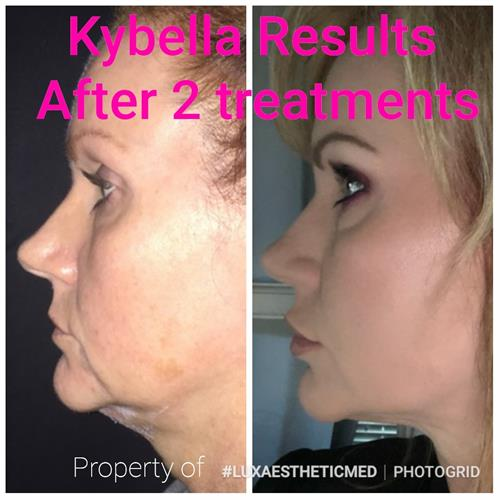 Kybella actually melts the under chin fat permanently over a 12 week period.
