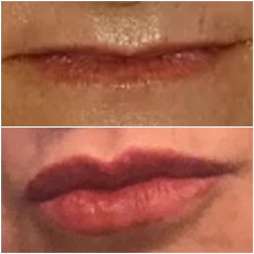 From no lips to a full, natural lip with Juvederm Ultra dermal filler.