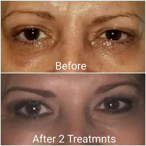 Under eye filler can lift the bags and delay the need for and under eye surgical lift.