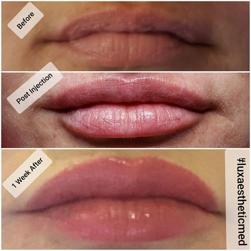 Before, immediately after and 30 days post treatment photograph of lip filler treatment