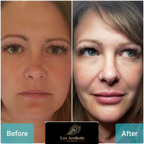 Under eyes, Cheek fillers and lip fillers restore your looks to the you that you remember.