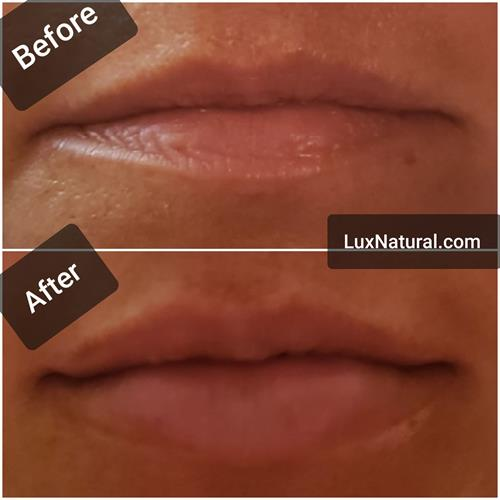 Volume replacement looks natural and gives the lips their structure and supports the surrounding tissue, preventing lines around the mouth, frown lines in the corners of the mouth and marionette lines