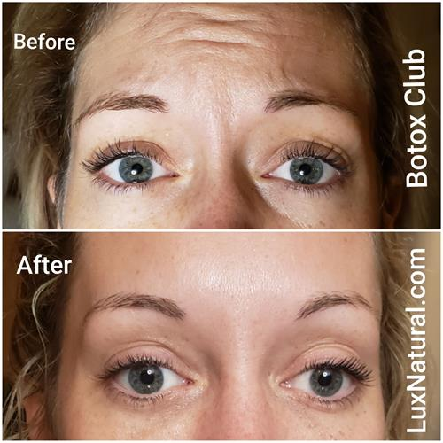 Botox works wonders at every age.