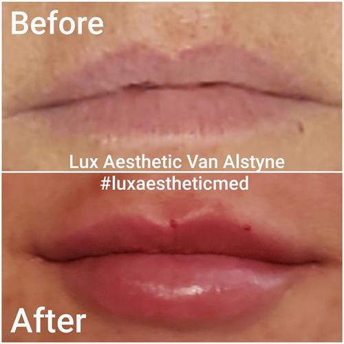Before and After reveals of Lip Augmentation