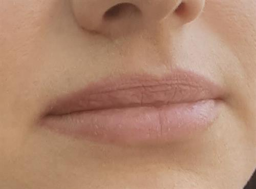 Soft and natural lip color, session one, healed