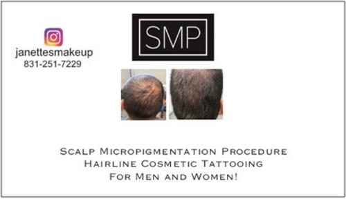 Conceal balding or thinning hair, cosmetic tattooing with SMP, for men and women!