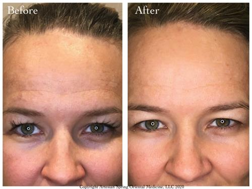 Results after 12 Sessions of Aesthetic Facial Acupuncture
