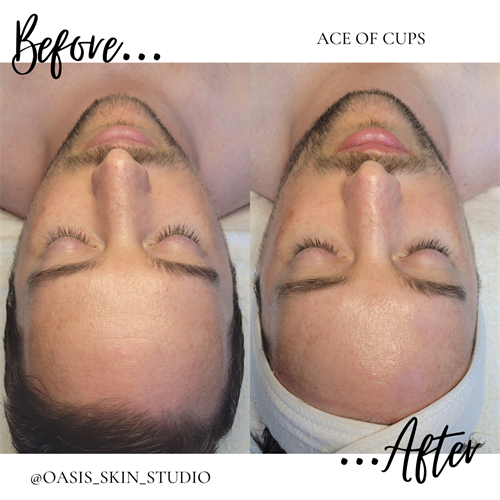 Ace of Cups Hydrodermabrasion Results