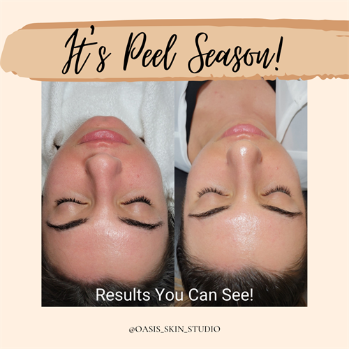 Peel season is here! We have customized peels unique to you and your lifestyle!