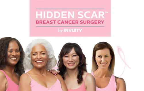 With a Hidden Scar procedure, your surgeon will place the incision in a location that is hard to see, so that the scar is hidden or less visible when your incision heals. As a result, you have little to no visible reminder of the surgery or your cancer.