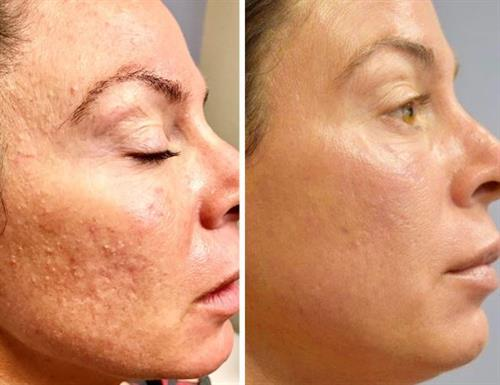 Gallery Image micro_needling_before_and_after.JPG