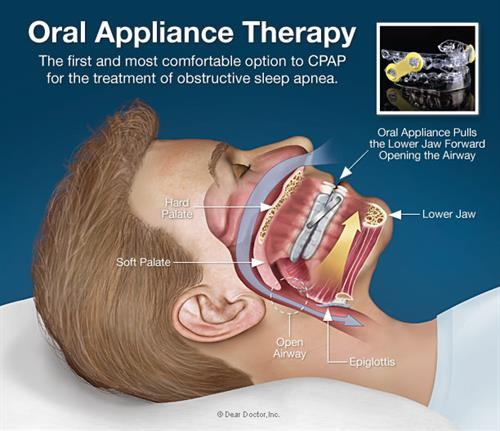Gallery Image oral-appliance-therapy.jpg