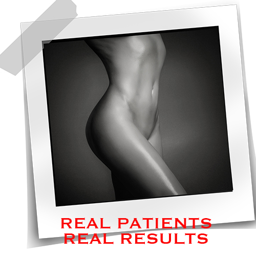 REAL Patients REAL Results