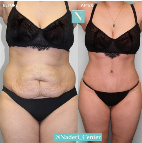 Tummy tuck with liposuction by Dr. Anderson.