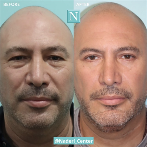 Upper and lower blepharoplasty by Dr. Kulak. The patient's overall appearance was rejuvenated while maintaining a natural, masculine, un-operated look. Dr. Kulak's artistic skills and abilities are unmatched.