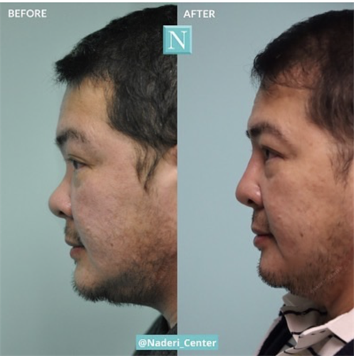 Nonsurgical rhinoplasty by Dr. Naderi. These photos were taken two years apart with touch-up maintenance every six months. Liquid rhinoplasties are especially great for Asian noses.