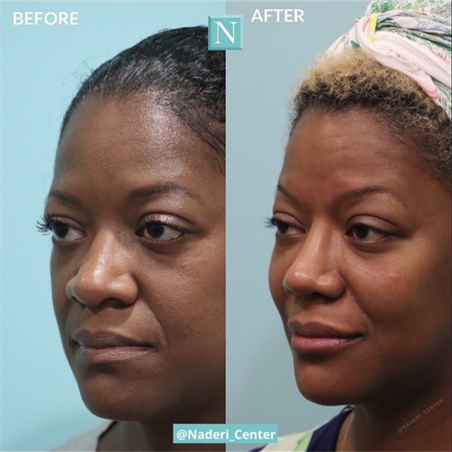 Ethnic rhinoplasty and facial fillers by Dr. Naderi. This lovely African American patient still looks like herself--but better!