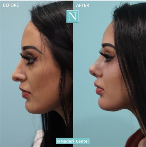 Rhinoplasty by Dr. Naderi. He reduced her dorsal hump and deprojected and lifted her tip to give her a beautiful natural nose.