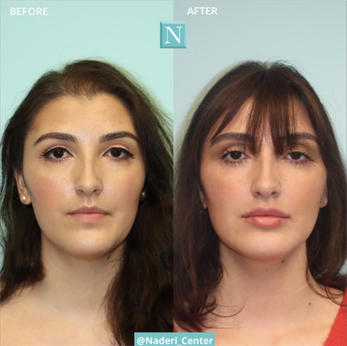 Lip injections by Dr. Snodgrass. A total of 2.5cc was injected over the course of one year to achieve these results. Fuller, but still very natural.