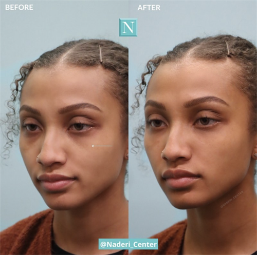 Tear trough injections by Dr. Snodgrass. This young, beautiful, African American patient looks more well-rested thanks to the improvement of her dark circles.