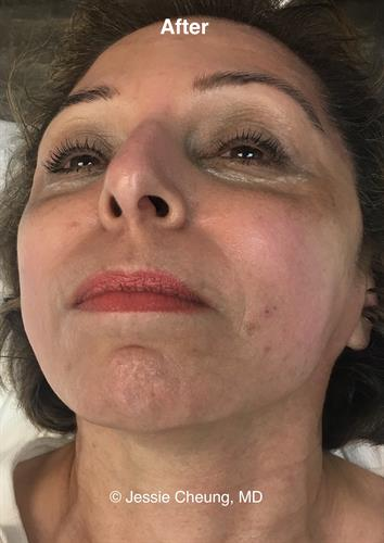 Post (after) Fillers, Botox, Skin Tightening