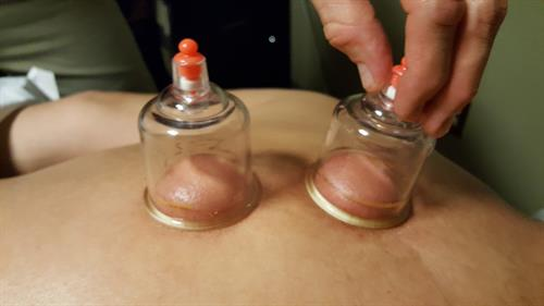 Cupping can alleviate pain, reduce inflammation and increase blood flow