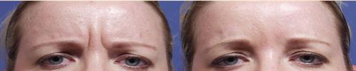 Botox by Dr. Kent
