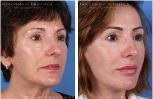 Facelift and Laser Skin Resurfacing