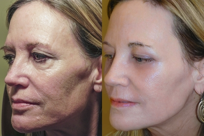 Years of sun damage can age skin, causing lines and wrinkles that make us look old and cause our skin to be unhealthy. It also makes us look tired. All these effects can be reversed, simply and effectively, with Dr. Scheiner's RESET for SUN Damage procedure.