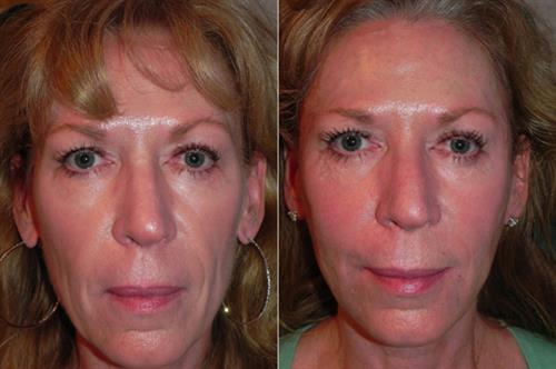 "Sculptra provides gentle gradual improvement we call ""getting younger gradually."""
