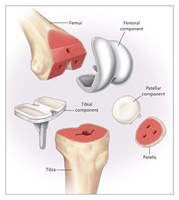Joint Replacement