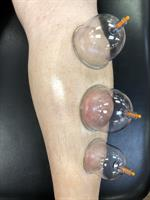 Gallery Image cupping.JPG