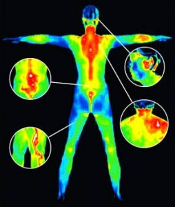 Thermography Screening Services