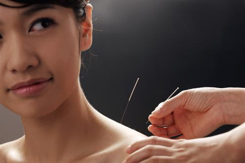 DRY NEEDLING ( accupuncture) TREATMENT FOR PAINFUL CONDITIONS