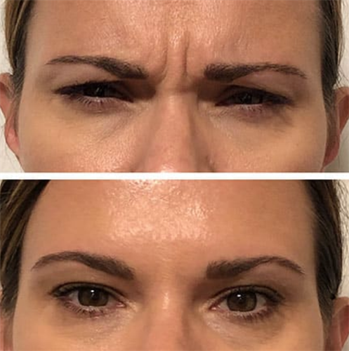 Anti-wrinkle treatment with Botox injections