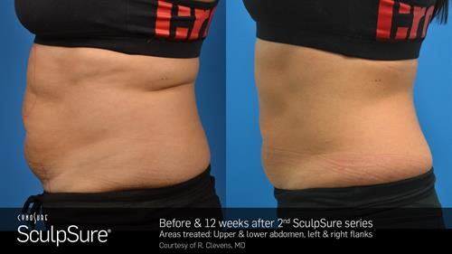Permanent non-surgical fat-melting (body contouring) with Sculpsure