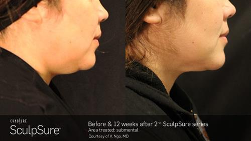 Permanent non-surgical fat-melting with Sculpsure