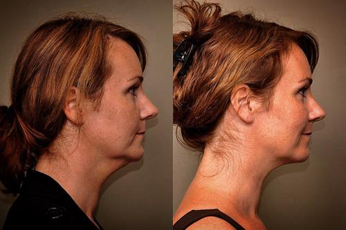 Eliminate your chin fullness with Kybella, an office procedure.