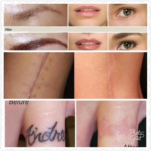 scar camouflage, permanent cosmetics,tattoo removal