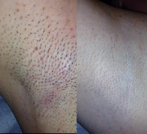 PERMANENT HAIR REDUCTION before and after 3 treatments UNDERARMS