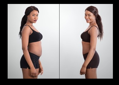 Gallery Image BEFORE_AND_AFTER_NEW_ORLEANS_BODY_CONTOURING.jpg
