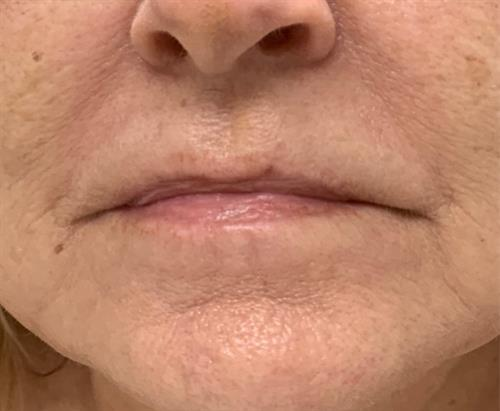 Cryoskin Facial - Toning/Lifting after 1 session (image showing after treatment)