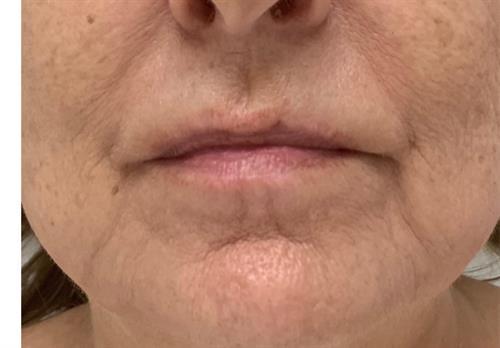 Cryoskin Facial - Toning/Lifting (image showing before treatment )