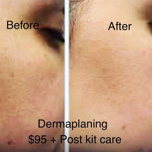 Dermaplaning (image showing before and after)