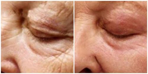 Plasma Pen to Fine Line and Wrinkles
